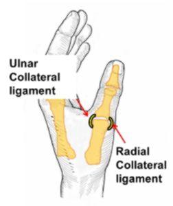 הרצועות המחזיקות את מפרק MPJ באגודל